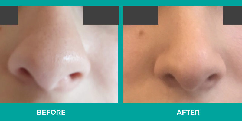 Rhinoplasty corrects functional problems and reshapes the nose.