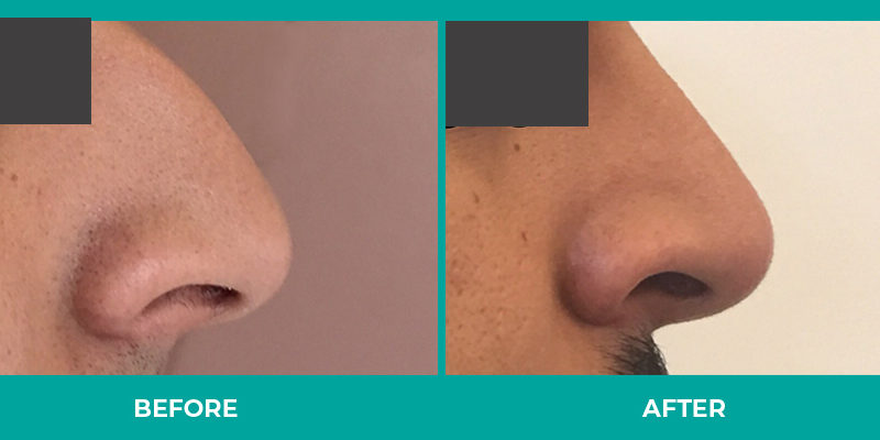 Men too can benefit from Rhinoplasty for nasal reduction, a wide nose or other corrections.